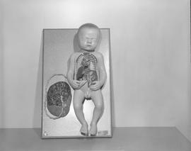 Radiology, X-ray; anatomical model of a new born baby with placenta [2 of 3]